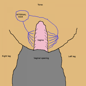 Anterior view of neo-vagina with hair growing inside after genital surgery